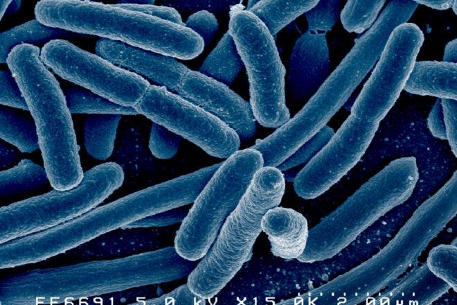 犬の腸内細菌 vol.3 大腸菌