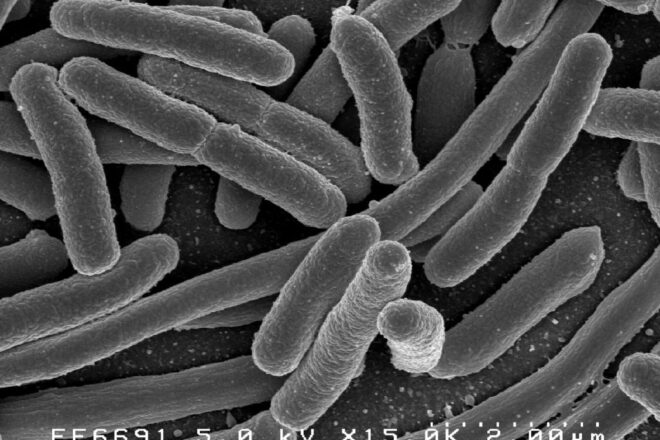 プロテオバクテリア門の大腸菌